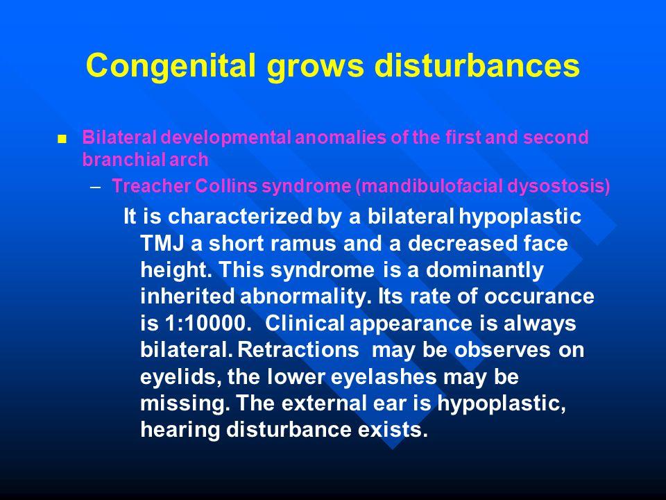Congenital grows disturbances Bilateral developmental anomalies of the first and second branchial arch – –Treacher Collins syndrome (mandibulofacial d
