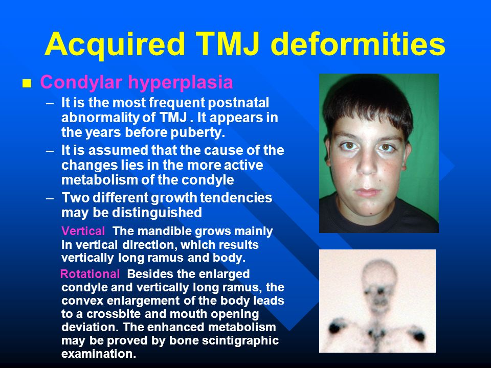 Acquired TMJ deformities Condylar hyperplasia – – It is the most frequent postnatal abnormality of TMJ. It appears in the years before puberty. – – It