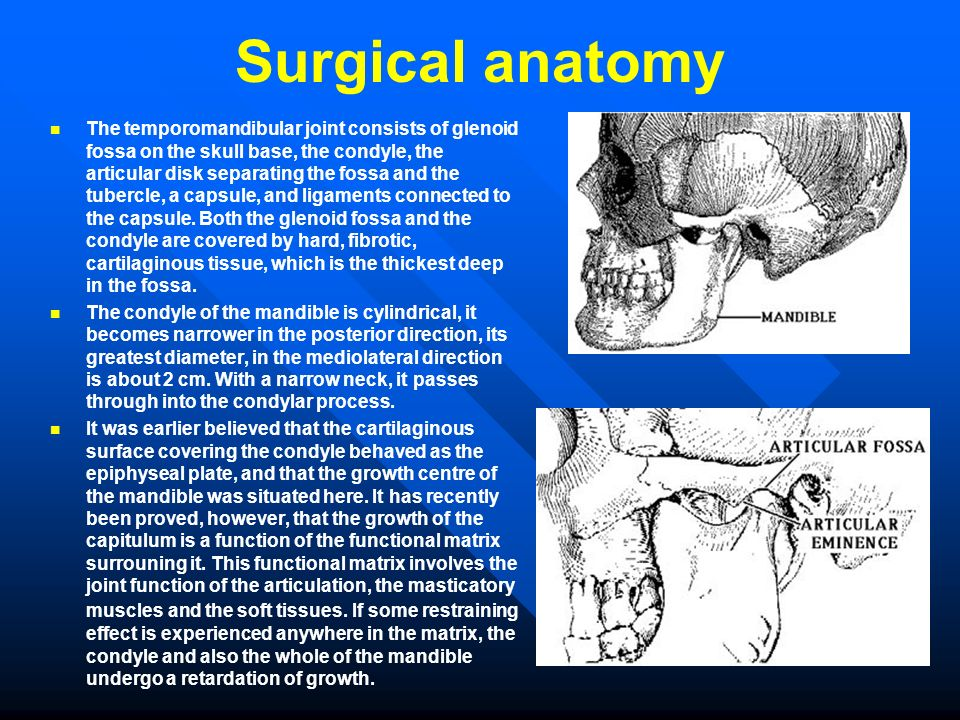 Surgical anatomy The temporomandibular joint consists of glenoid fossa on the skull base, the condyle, the articular disk separating the fossa and the