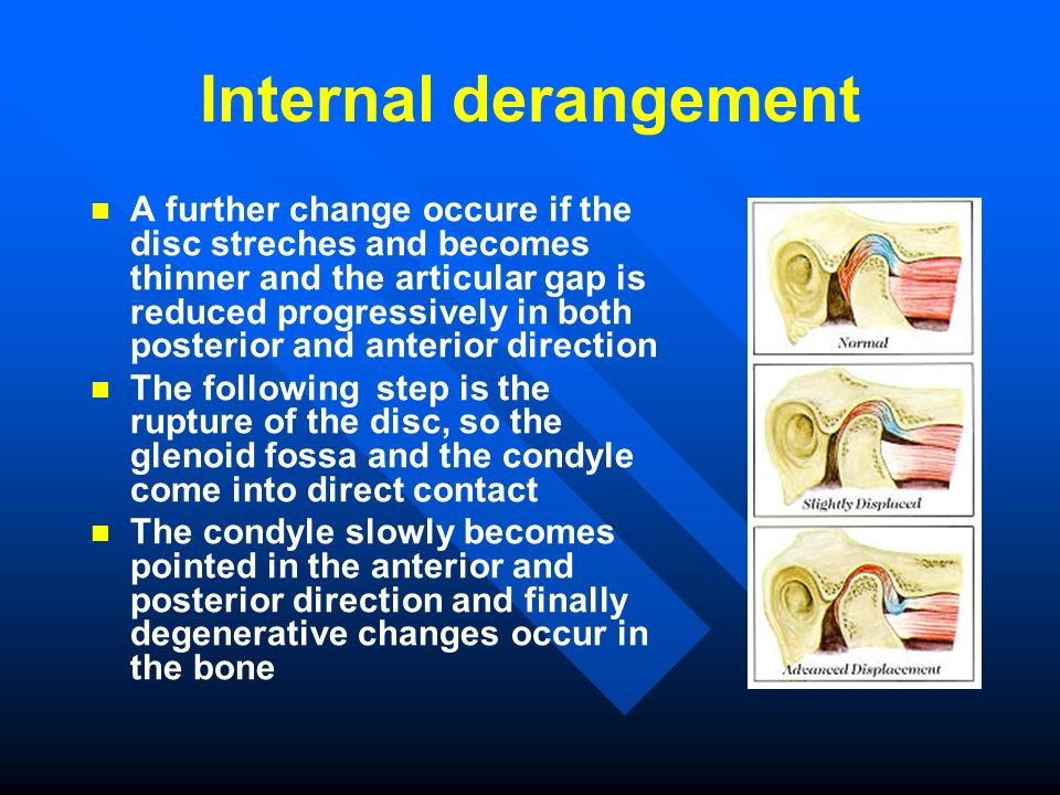 Internal derangement A further change occure if the disc streches and becomes thinner and the articular gap is reduced progressively in both posterior