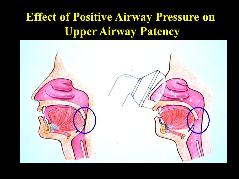 Effect of Positive Airway Pressure on Upper Airway Patency