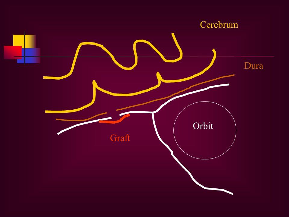 Orbit Dura Graft Cerebrum