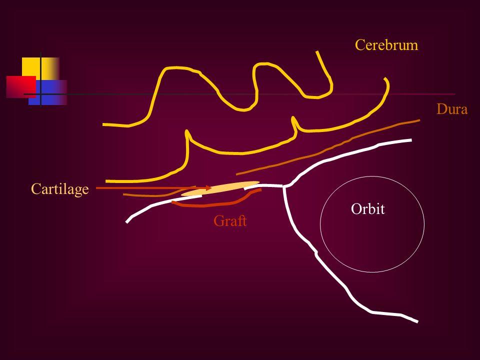 Orbit Dura Graft Cartilage Cerebrum