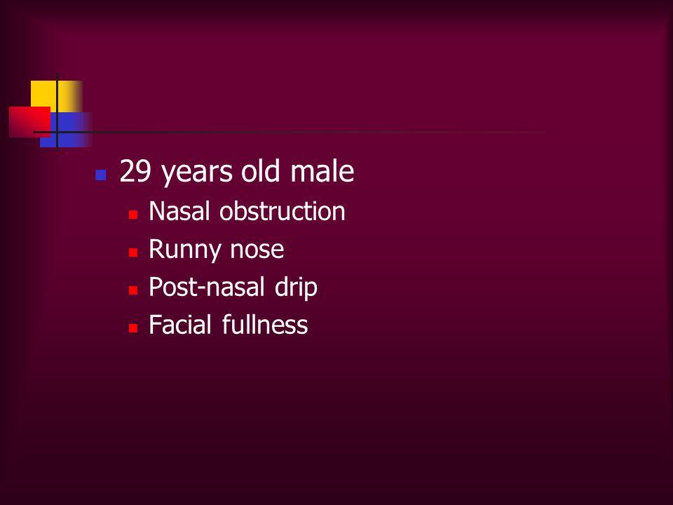 29 years old male Nasal obstruction Runny nose Post-nasal drip Facial fullness