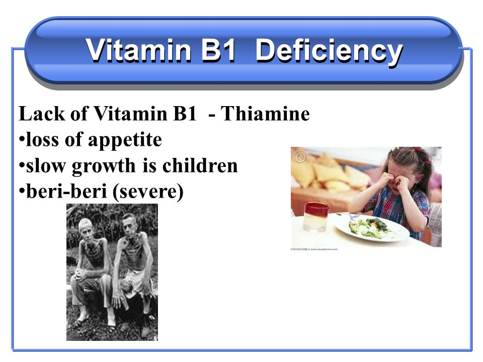 Vitamin B2 - Water Soluble Vitamin B2 - Riboflavin Helps the release of energy from carbohydrates Needed for normal growth in children Found in breakfast cereals, potatoes,bread, red meat