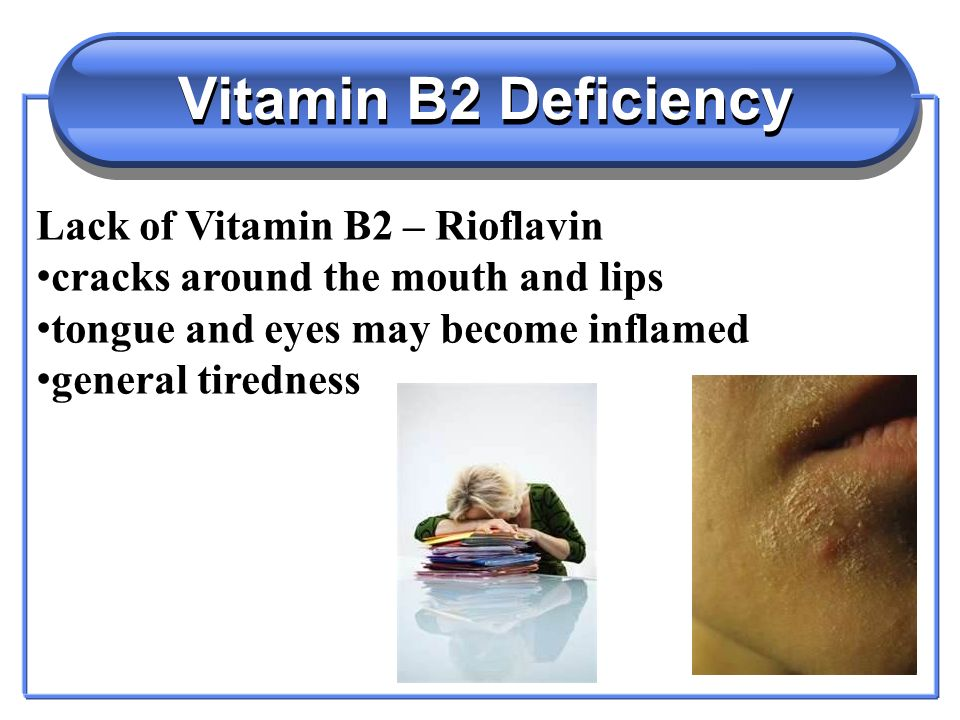 Vitamin B2 Deficiency Lack of Vitamin B2 – Rioflavin cracks around the mouth and lips tongue and eyes may become inflamed general tiredness