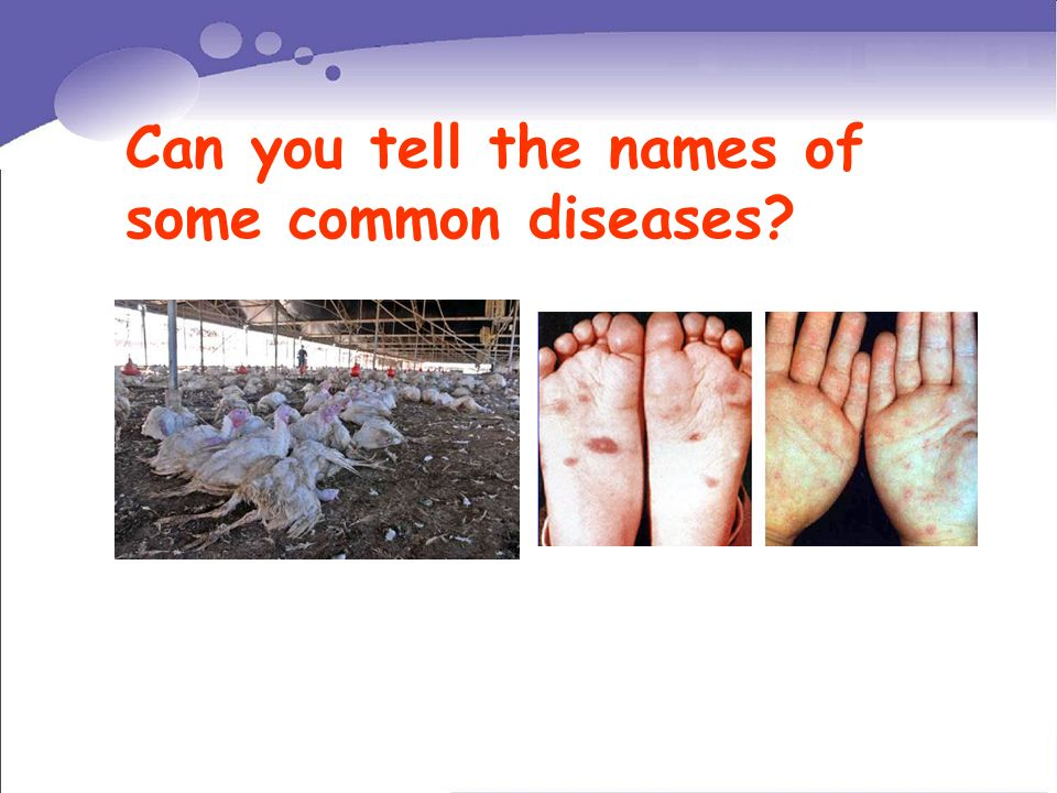 Can you tell the names of some common diseases