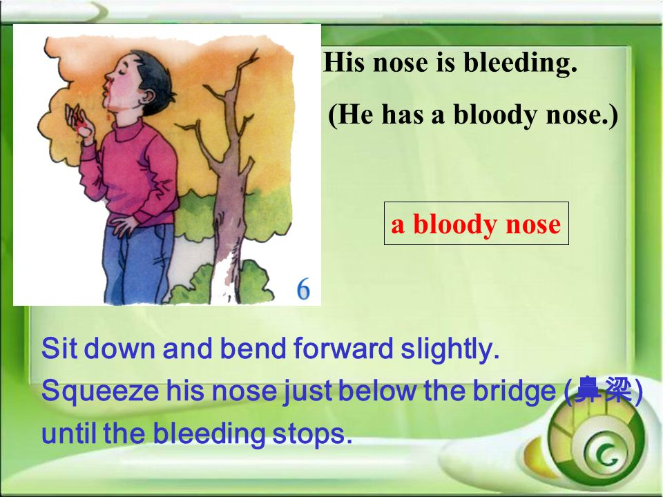 His nose is bleeding. (He has a bloody nose.) a bloody nose Sit down and bend forward slightly. Squeeze his nose just below the bridge () until the bl