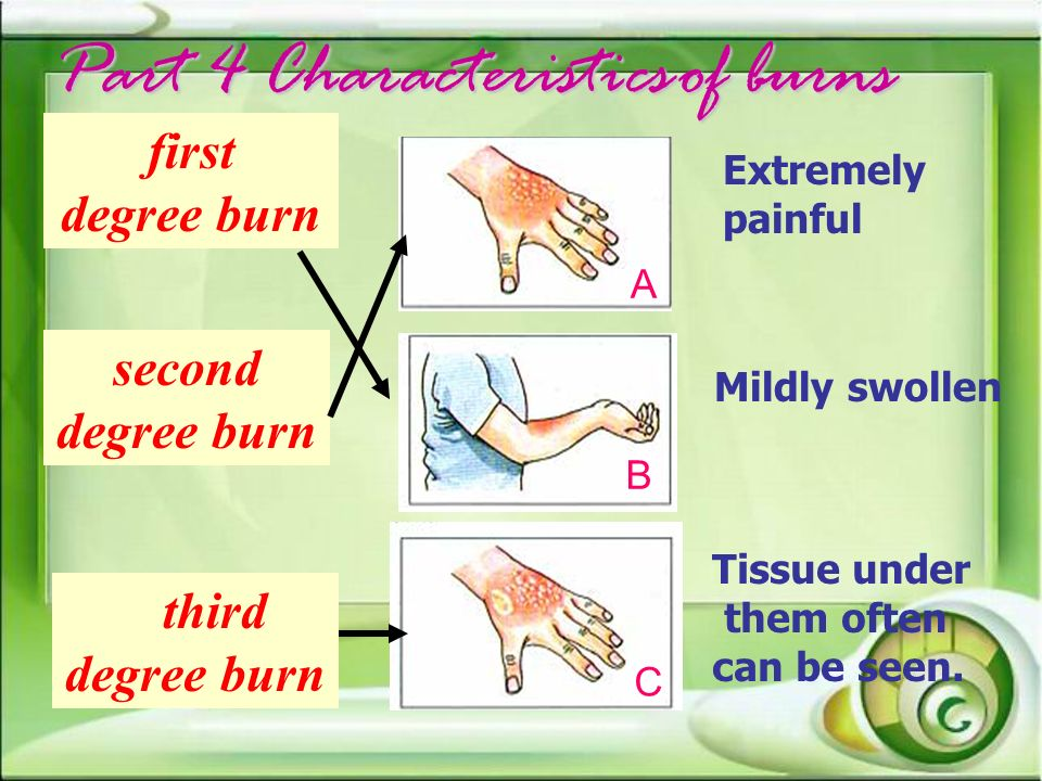Part 4 Characteristicsof burns Part 4 Characteristics of burns B A C Extremely painful Mildly swollen Tissue under them often can be seen. second degr