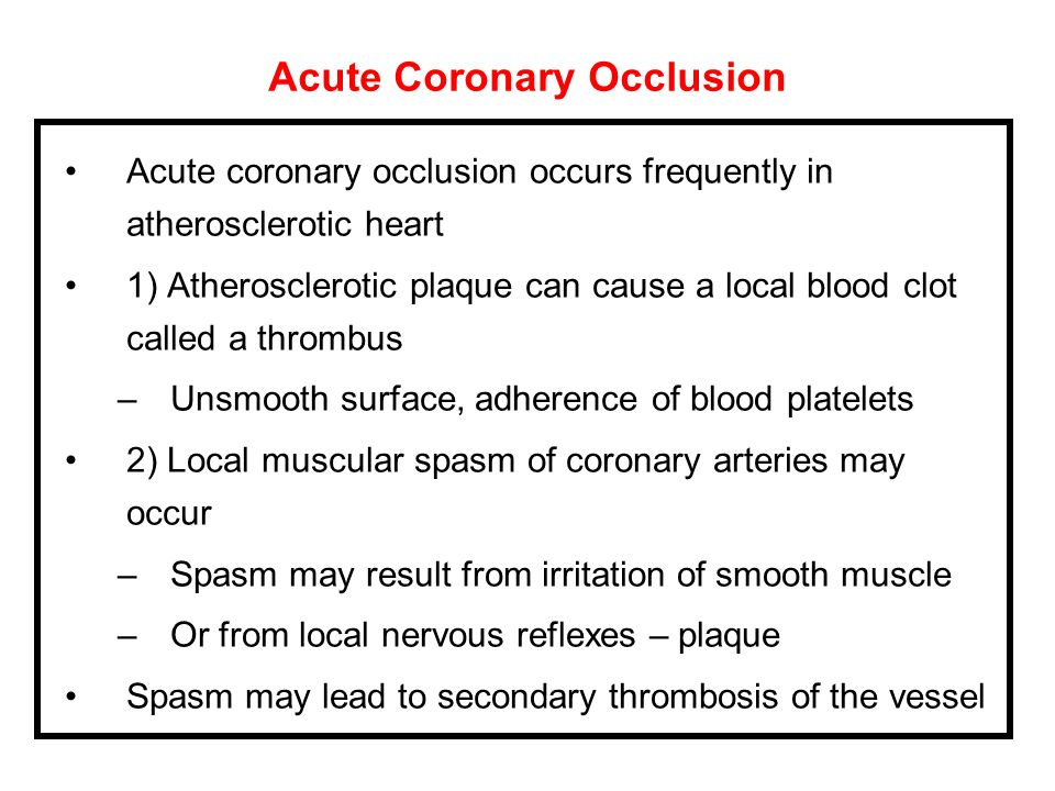 Acute Coronary Occlusion Acute coronary occlusion occurs frequently in atherosclerotic heart 1) Atherosclerotic plaque can cause a local blood clot ca