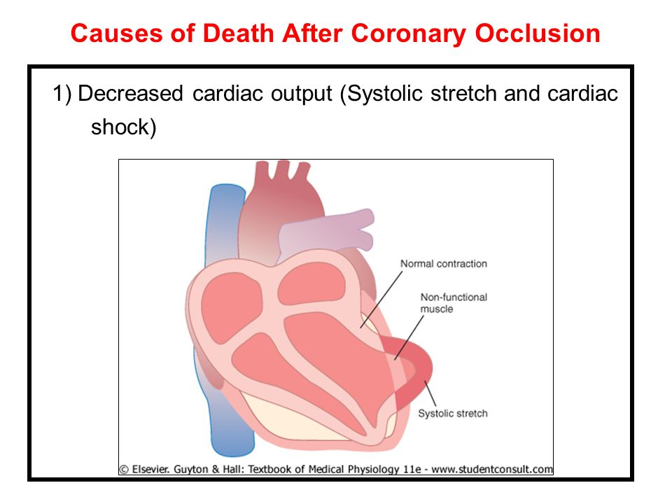 Causes of Death After Coronary Occlusion 1) Decreased cardiac output (Systolic stretch and cardiac shock)