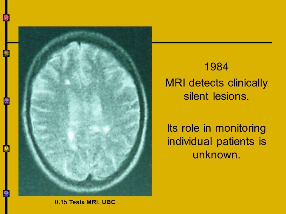 Do Serial MRI Predict Relapses.