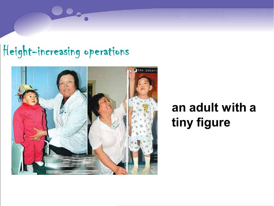 Height-increasing operations an adult with a tiny figure