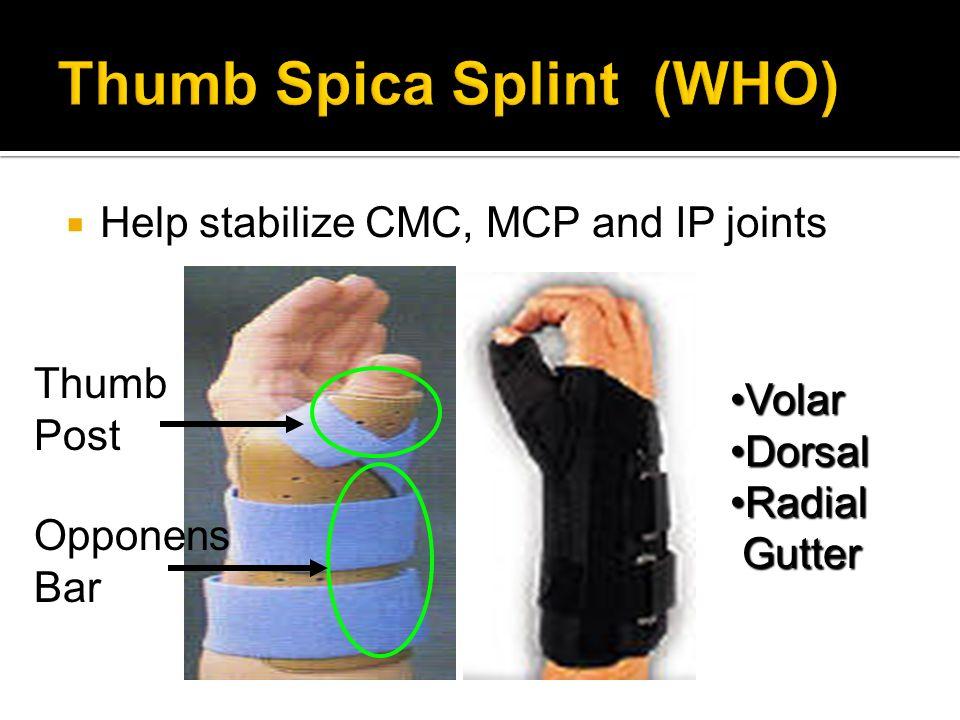Help stabilize CMC, MCP and IP joints Thumb Post VolarVolar DorsalDorsal RadialRadial Gutter Gutter Opponens Bar