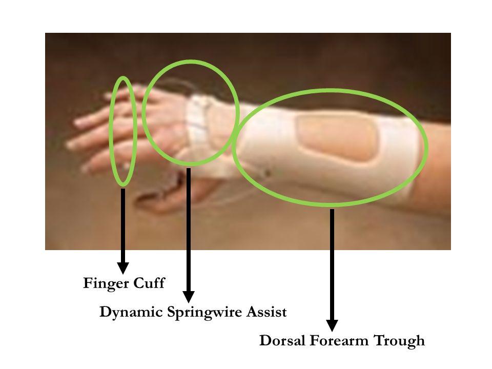 Finger Cuff Dorsal Forearm Trough Dynamic Springwire Assist