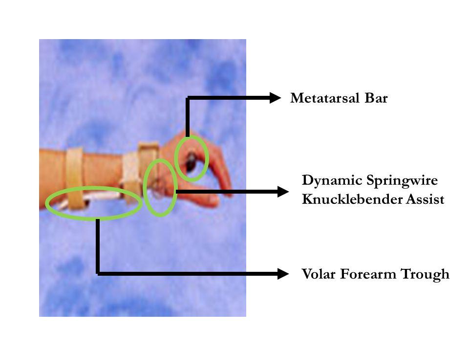 Metatarsal Bar Dynamic Springwire Knucklebender Assist Volar Forearm Trough