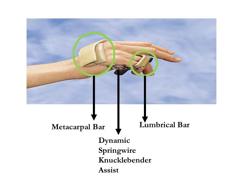 Metacarpal Bar Dynamic Springwire Knucklebender Assist Lumbrical Bar