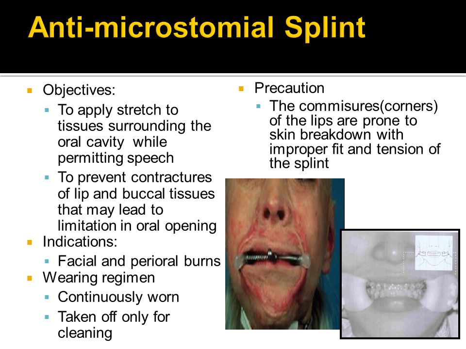 Objectives: To apply stretch to tissues surrounding the oral cavity while permitting speech To prevent contractures of lip and buccal tissues that may