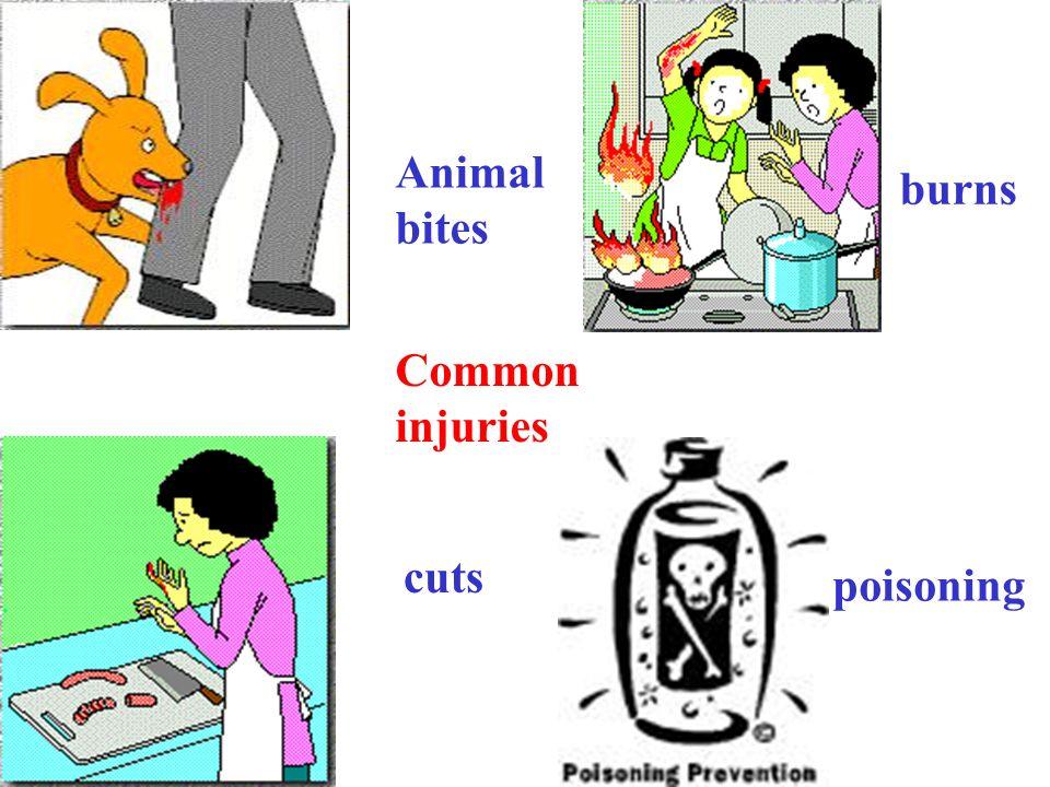 Animal bites burns cuts poisoning Common injuries