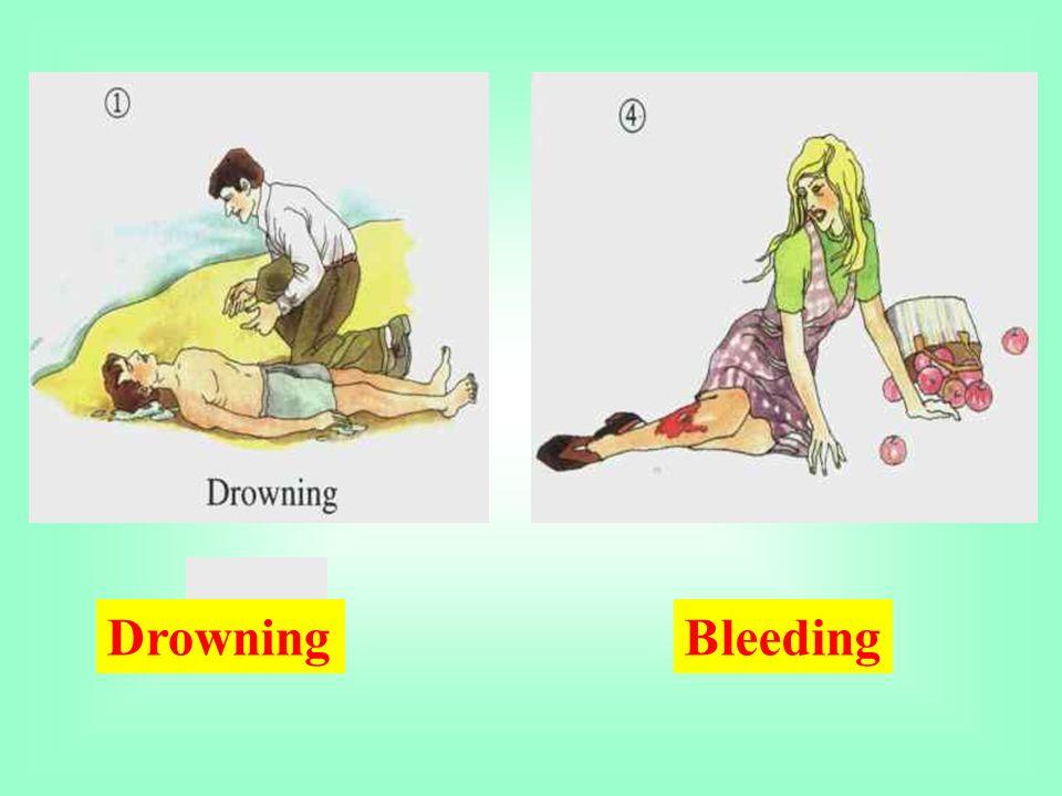 DrowningBleeding