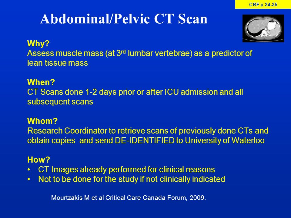 Abdominal/Pelvic CT Scan Why? Assess muscle mass (at 3 rd lumbar vertebrae) as a predictor of lean tissue mass When? CT Scans done 1-2 days prior or a