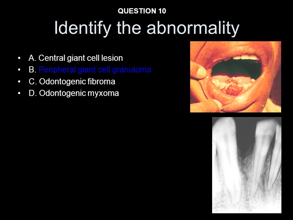 A. Central giant cell lesion B. Peripheral giant cell granuloma C. Odontogenic fibroma D. Odontogenic myxoma Identify the abnormality QUESTION 10