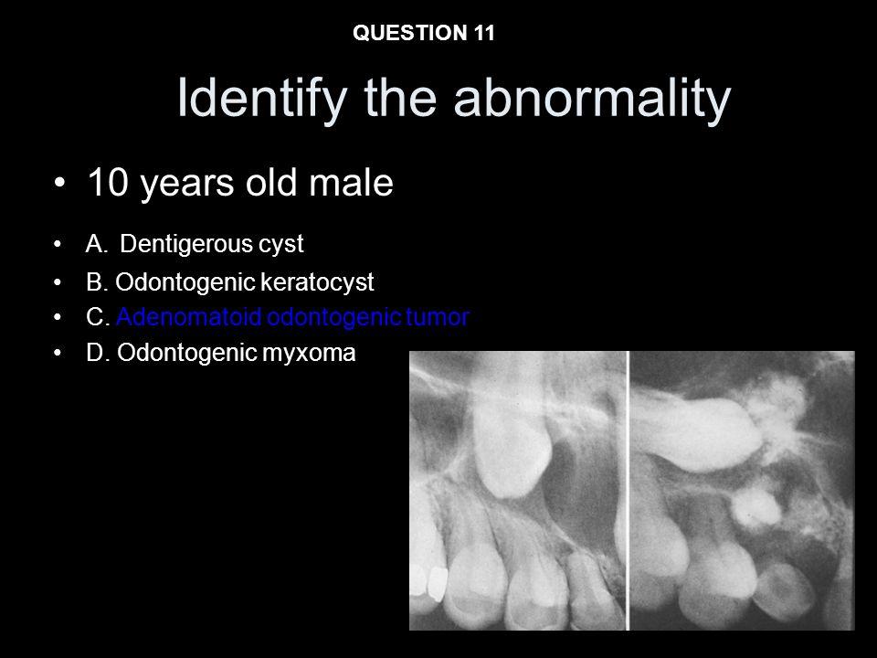 Identify the abnormality 10 years old male A. Dentigerous cyst B. Odontogenic keratocyst C. Adenomatoid odontogenic tumor D. Odontogenic myxoma QUESTI