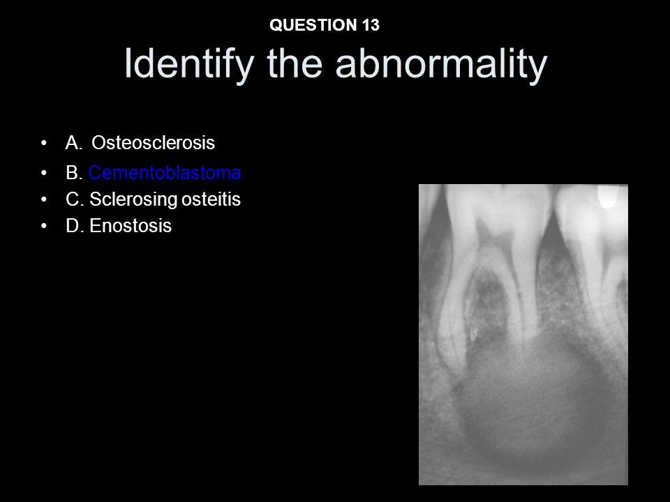 Identify the abnormality A. Osteosclerosis B. Cementoblastoma C. Sclerosing osteitis D. Enostosis QUESTION 13