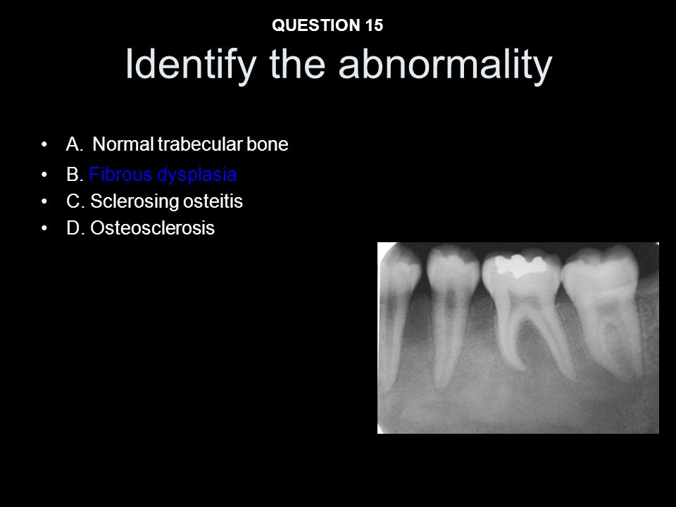 Identify the abnormality A. Normal trabecular bone B. Fibrous dysplasia C. Sclerosing osteitis D. Osteosclerosis QUESTION 15