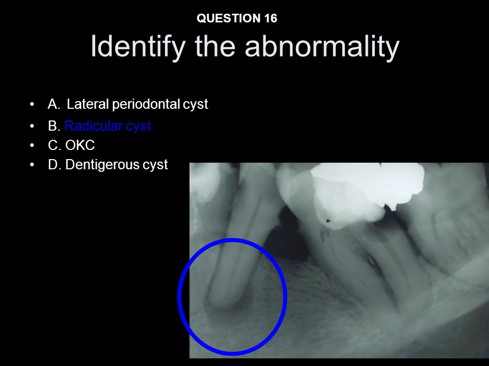 Identify the abnormality A. Lateral periodontal cyst B. Radicular cyst C. OKC D. Dentigerous cyst QUESTION 16