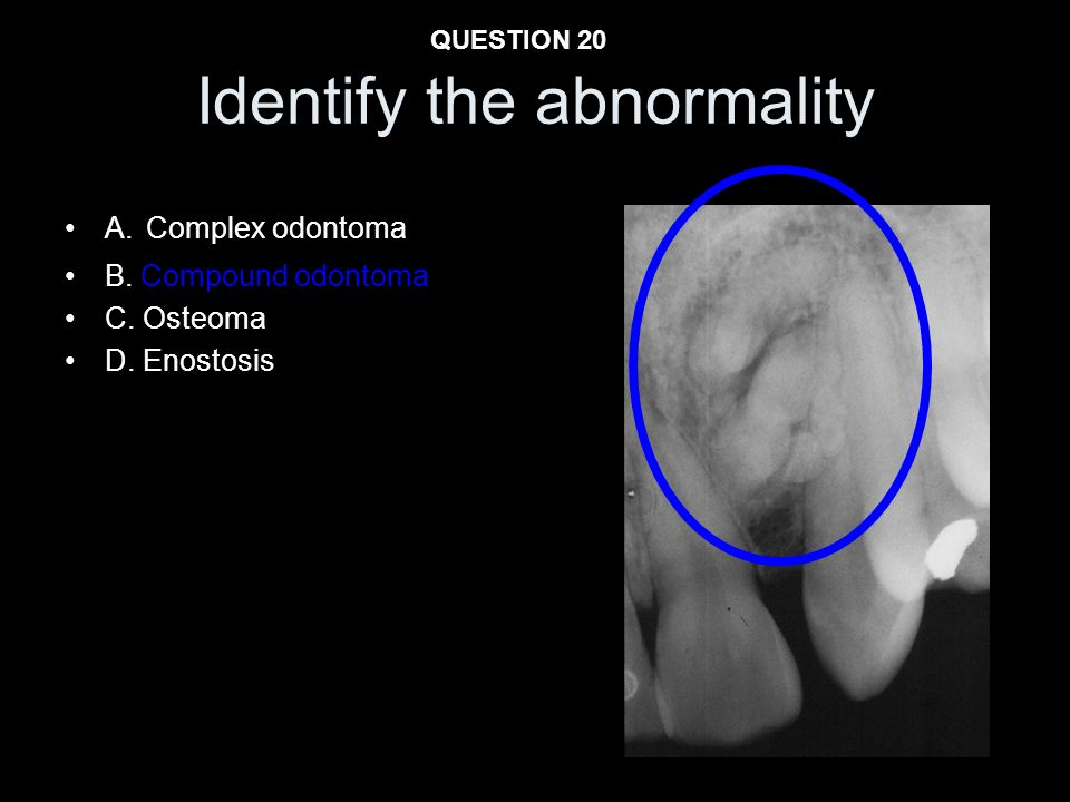 Identify the abnormality A. Complex odontoma B. Compound odontoma C. Osteoma D. Enostosis QUESTION 20