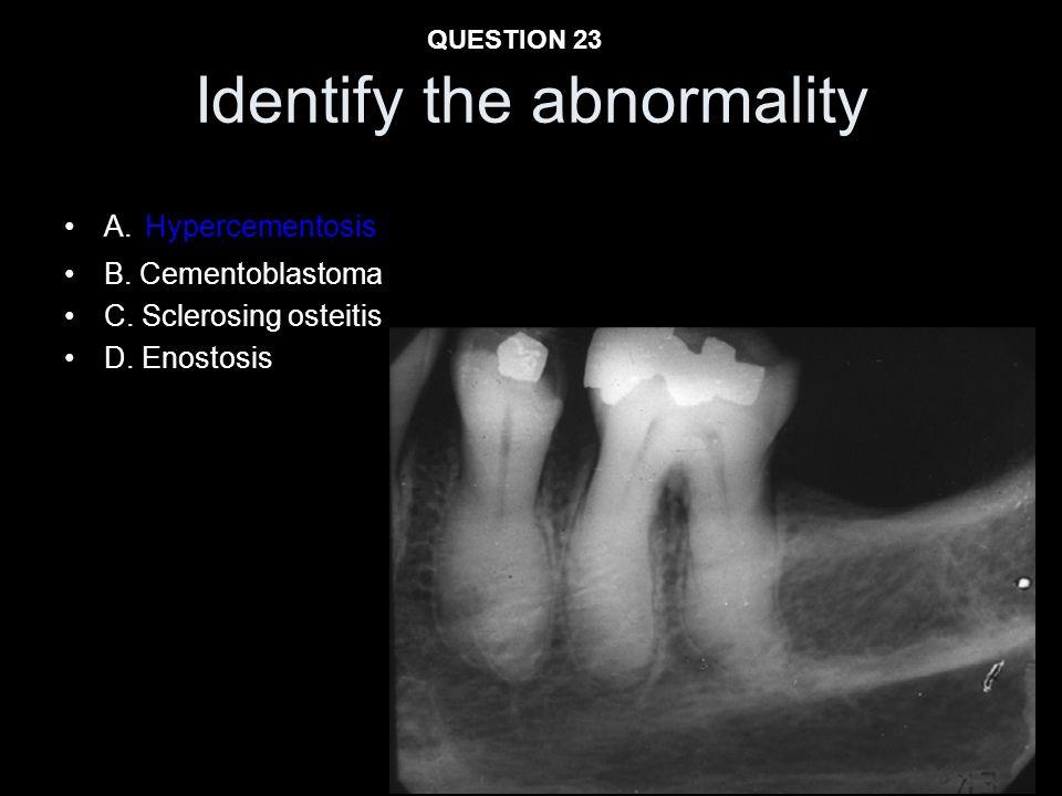 Identify the abnormality A. Hypercementosis B. Cementoblastoma C. Sclerosing osteitis D. Enostosis QUESTION 23