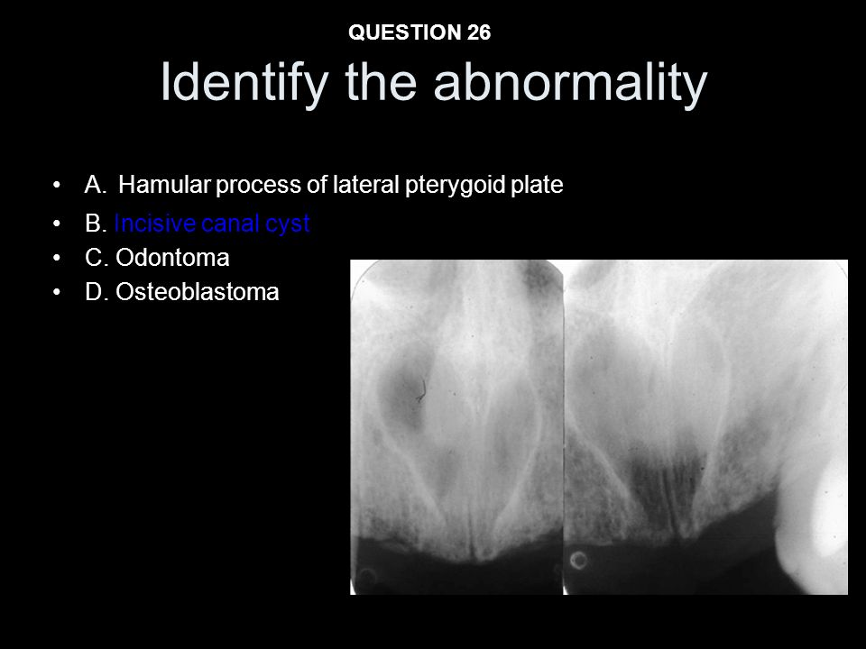 Identify the abnormality A. Hamular process of lateral pterygoid plate B. Incisive canal cyst C. Odontoma D. Osteoblastoma QUESTION 26