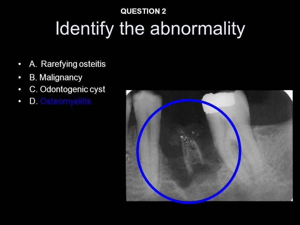 Identify the abnormality A. Rarefying osteitis B. Malignancy C. Odontogenic cyst D. Osteomyelitis QUESTION 2