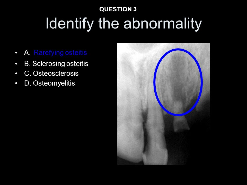 A. Rarefying osteitis B. Sclerosing osteitis C. Osteosclerosis D. Osteomyelitis Identify the abnormality QUESTION 3