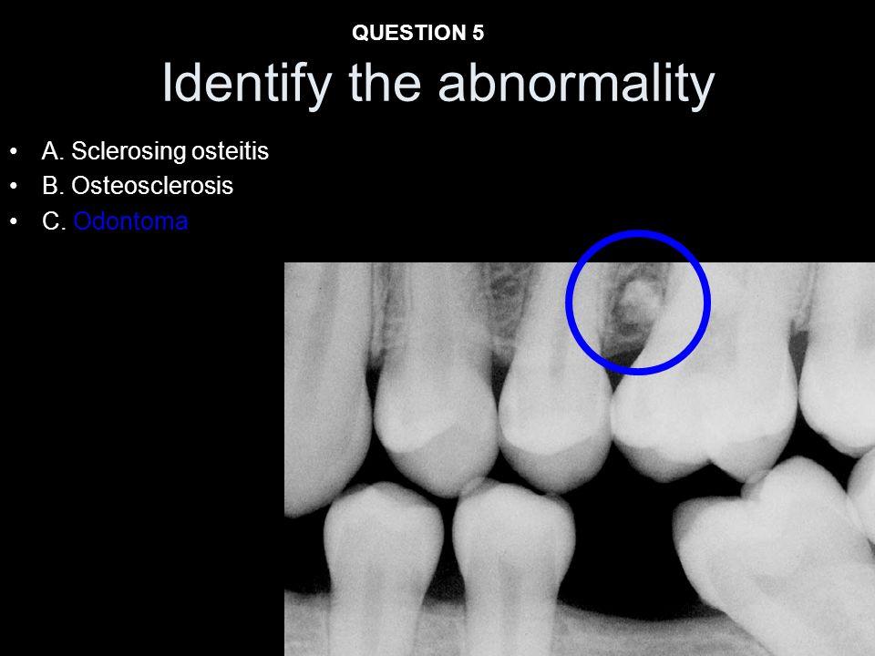 A. Sclerosing osteitis B. Osteosclerosis C. Odontoma Identify the abnormality QUESTION 5