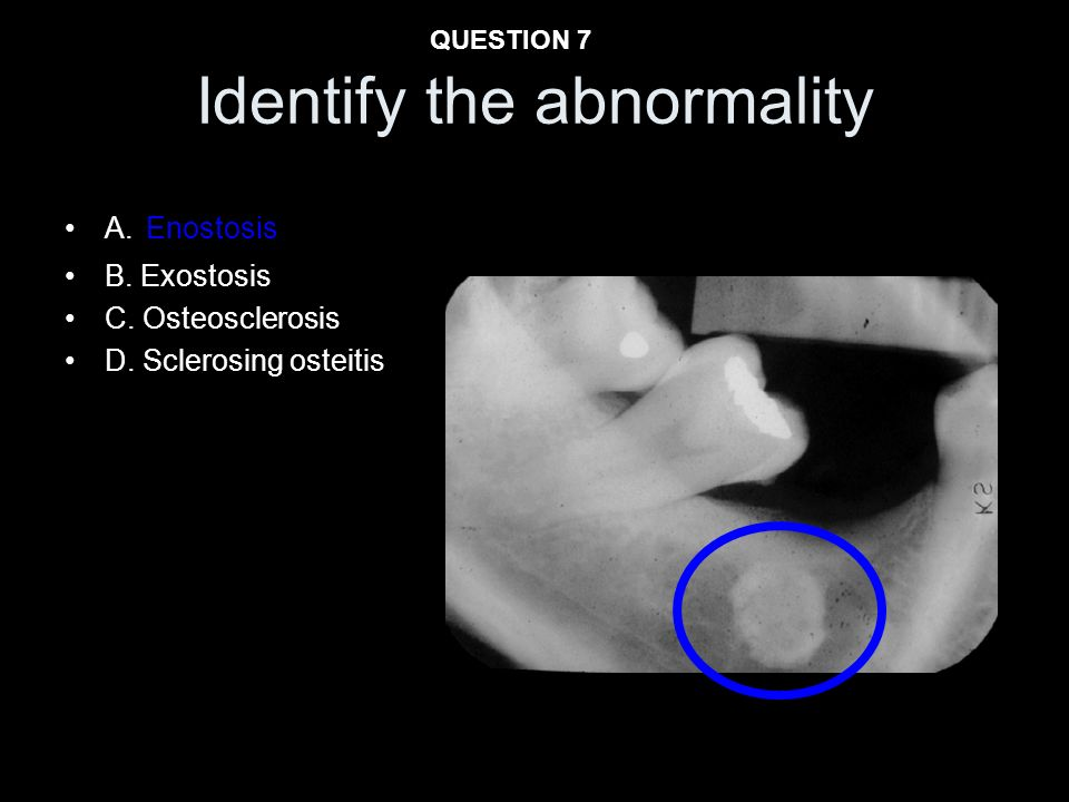 A. Enostosis B. Exostosis C. Osteosclerosis D. Sclerosing osteitis Identify the abnormality QUESTION 7