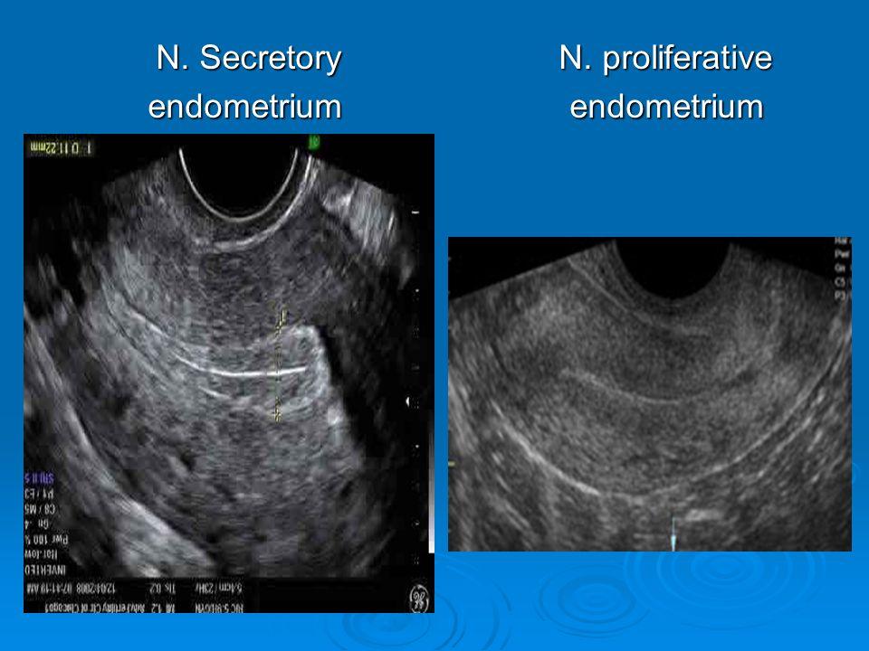 N. Secretory N. proliferative endometrium endometrium