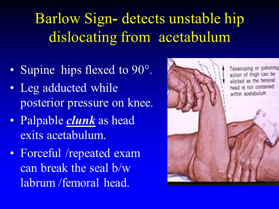 Barlow Sign- detects unstable hip dislocating from acetabulum Supine hips flexed to 90°. Leg adducted while posterior pressure on knee. Palpable clunk