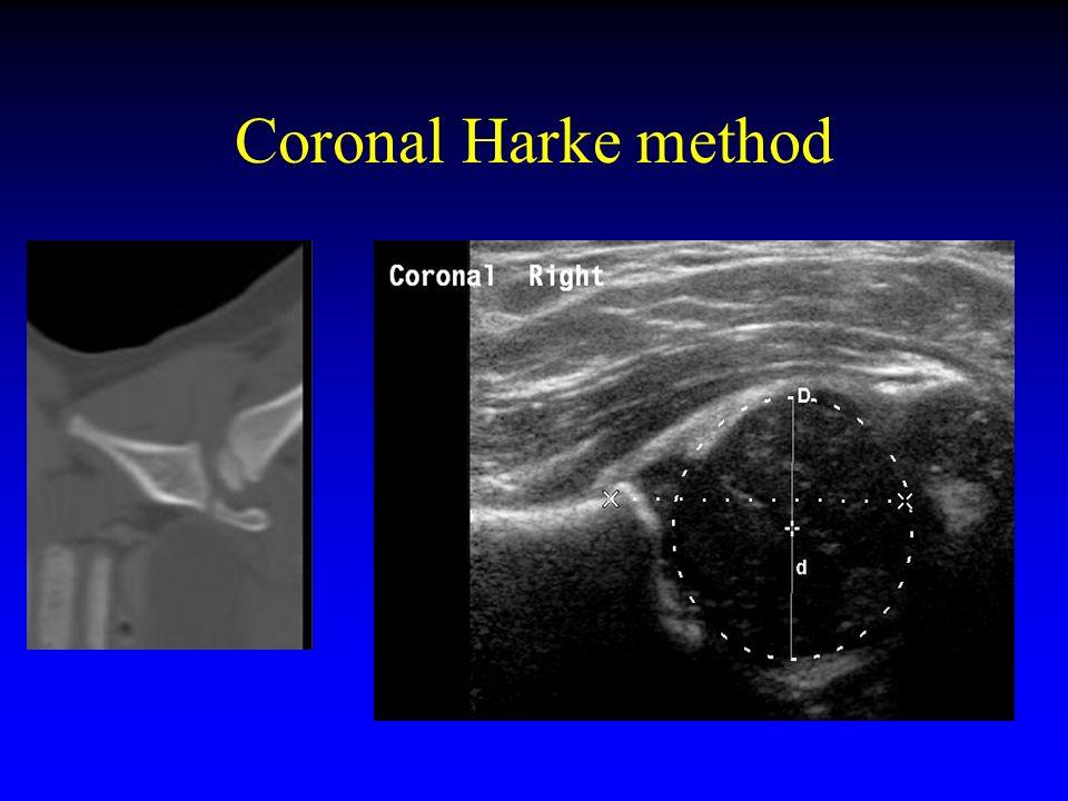 Coronal Harke method
