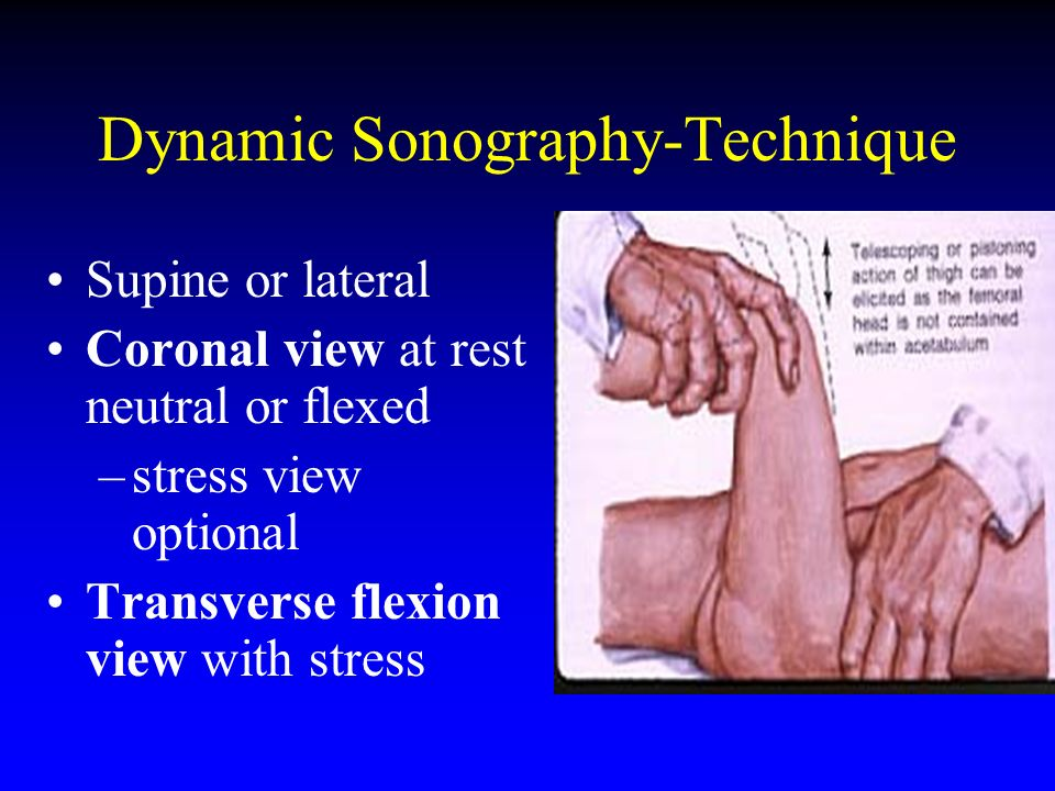 Dynamic Sonography-Technique Supine or lateral Coronal view at rest neutral or flexed –stress view optional Transverse flexion view with stress