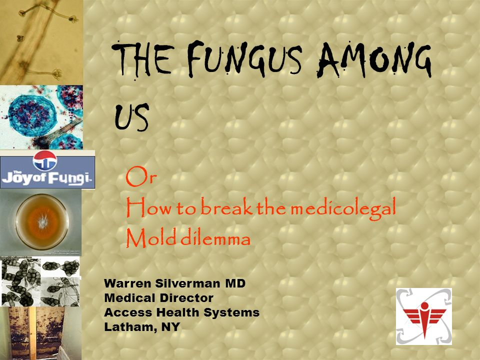 How are we affected by Fungi? ACTUAL INFECTIONS ALLERGIC REACTIONS FUNGAL TOXINS