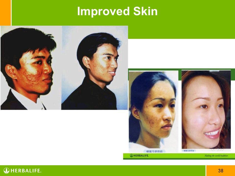38 Improved Skin