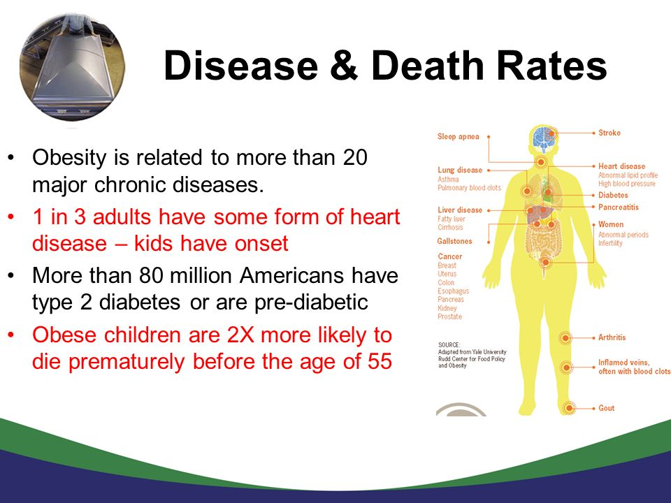 Disease & Death Rates Obesity is related to more than 20 major chronic diseases. 1 in 3 adults have some form of heart disease – kids have onset More