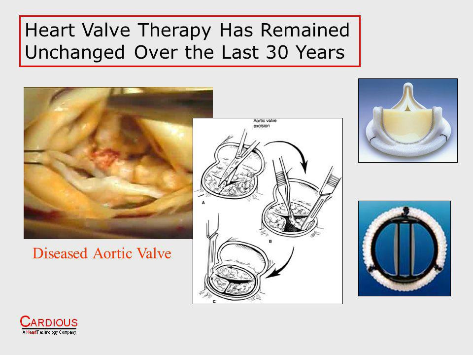 Heart Valve Therapy Has Remained Unchanged Over the Last 30 Years Diseased Aortic Valve