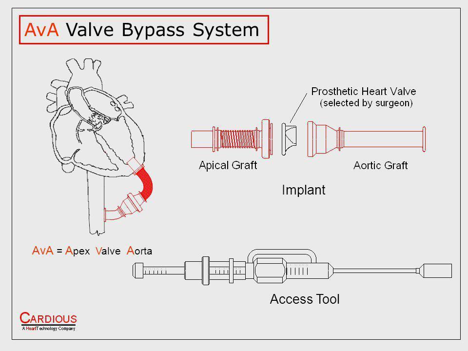 AvA Valve Bypass System AvA = A pex Valve A orta Access Tool Implant