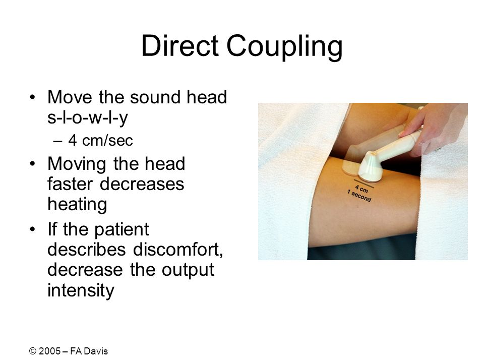 © 2005 – FA Davis Direct Coupling Move the sound head s-l-o-w-l-y –4 cm/sec Moving the head faster decreases heating If the patient describes discomfort, decrease the output intensity