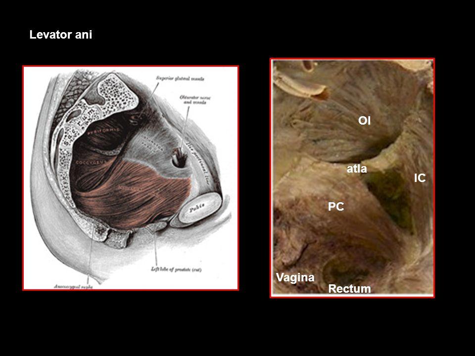 Levator ani OI PC IC atla Vagina Rectum