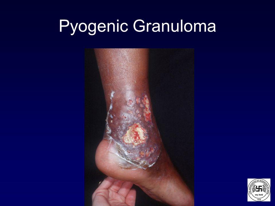 Pyogenic Granuloma