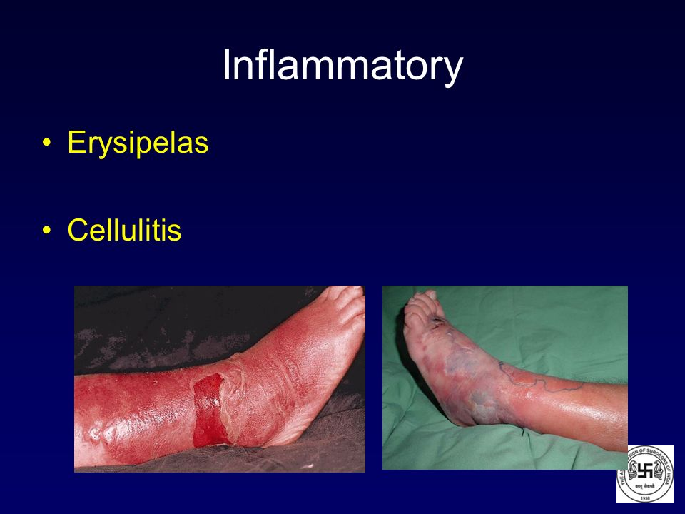 Inflammatory Erysipelas Cellulitis